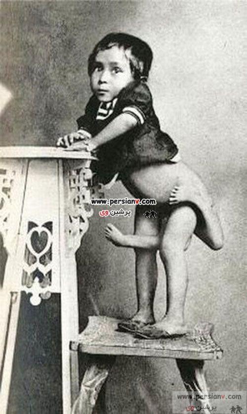عکسهای باور نکردنی از آدمهای عجیب الخلقه !!!