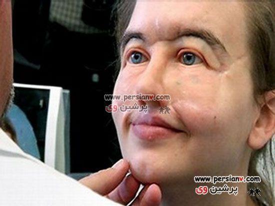 تصاویر: دختر27 ساله ای که11 سال بدون صورت زندگی کرد
