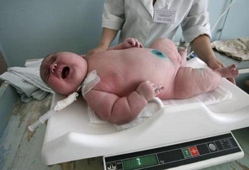 عکس : به دنیا آمدن نوزاد 7 کیلویی !