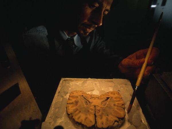 عکس واقعی از برش مغز انسان