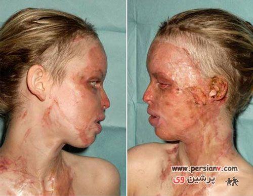 عکس هایی از اسید پاشی به صورت کتی پیپر مدل مشهور 18+
