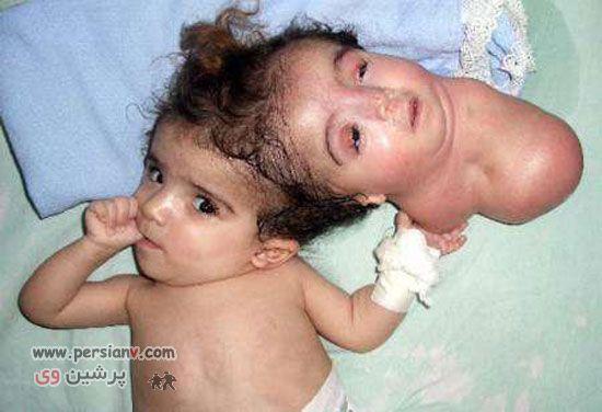 عکس های دیدنی و باور نکردنی از نوزادن و کودکان عجیب در دنیا
