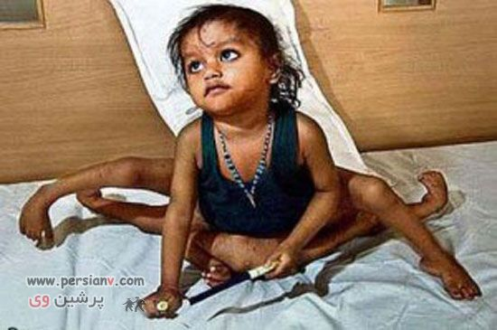 عکس های دیدنی و باور نکردنی از نوزادان و کودکان عجیب در دنیا