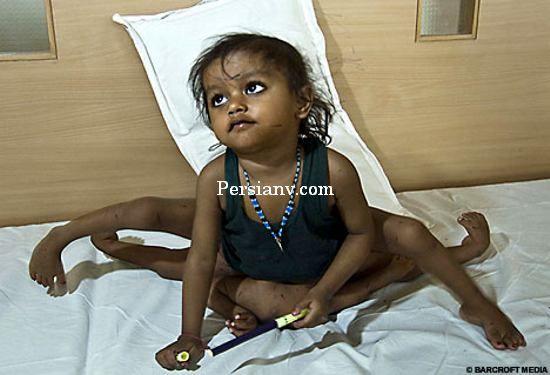 عکس : دختر 8 پا بعد از عمل !!