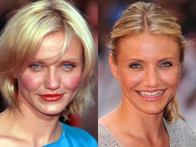 عکس:قبل و بعد از عمل زیبایی بینی بازیگران