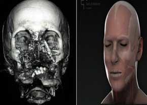 اولين جراحي پيوند كامل صورت