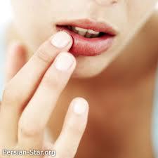 10 علت خشکی لب ها در زمستان و راههای درمان
