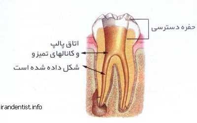 مراحل عصب کشی دندان(با تصاویر)