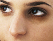 کاهش تیرگی دور چشم