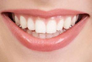 داشتن دندانهای سفید وشفاف