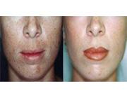 توصیه های یک پزشک برای چگونگی لایهبرداری پوست