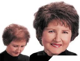 تسریع در رشد مو های سر