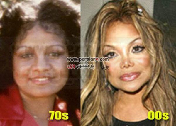 تصاویر:چهره متفاوت خواهر مایکل جکسون بعد ازجراحی زیبایی