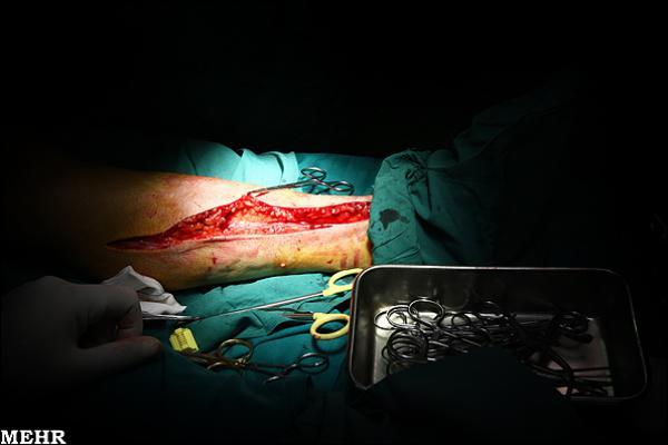 عکس/ عمل جراحی قلب باز +13