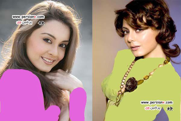 قبل و بعد از عمل زیبایی بازیگران بالیوود +عکس