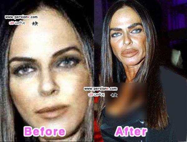 افراد مشهوری که در جراحی زیبایی بدشانس ترین بودند+عکس
