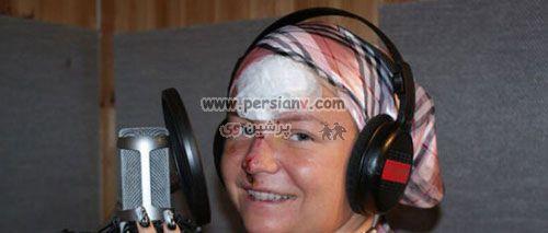 عکسهای دیدنی دختری زیبا که با جراحی پلاستیک شبیه هیولا شد