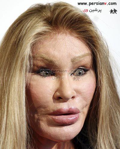 عکسهایی از وحشتناکترین زن قربانی جراحی پلاستیک !