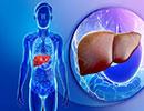 موثرترین راه درمان کبد چرب