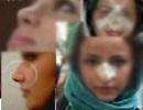 انجام جراحی های زیبایی جایزند یا حرام؟