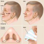 حکم شرعی عمل جراحی بینی را میدانید؟
