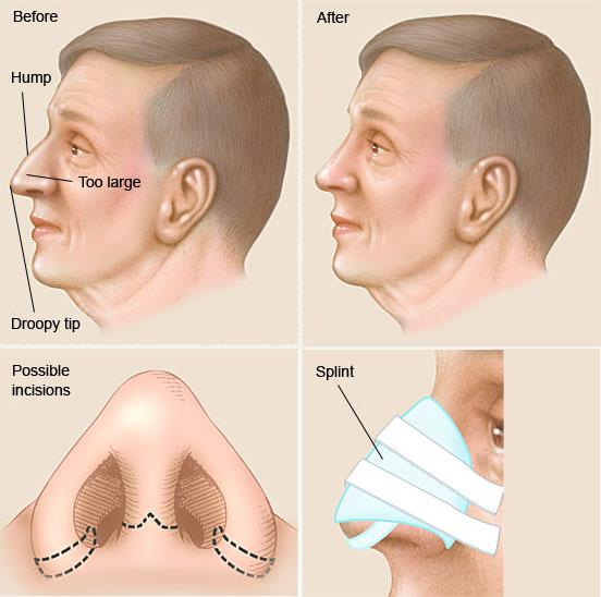 حکم شرعی عمل جراحی بینی