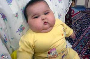 عکس : نوزاد ۲۰ کیلویی در تهران