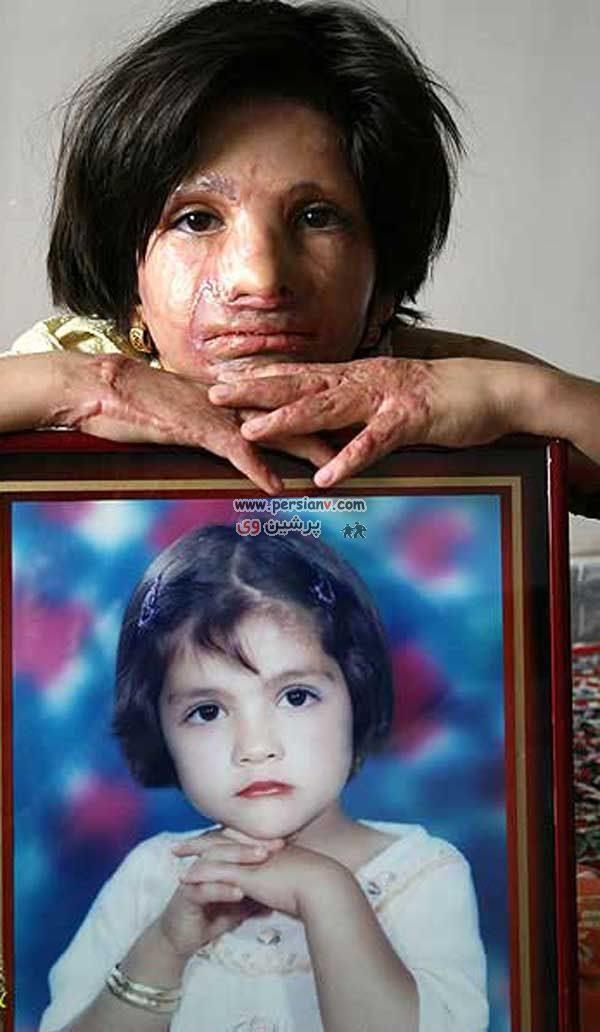 عکس هایی از کودکان سوخته در آتش + ۱۸