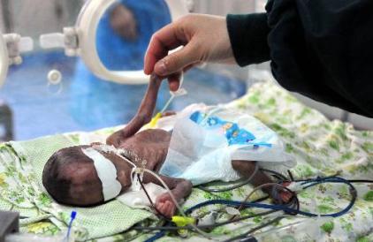 عکس: کوچکترین نوزاد جهان
