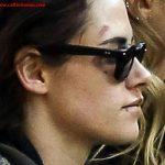 چه اتفاقی برایش افتاده است؟/ تصاویری از ستاره زن هالیوود با صورت زخمی و کبود منتشر شد+تصاویر و جزئیات