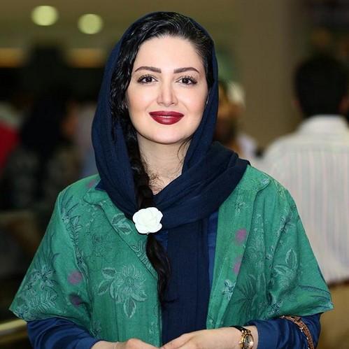ماجرای جراحی زیبایی های بازیگران ایرانی