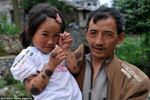 شرایط غم انگیز ظاهر دختربچه ۶ ساله چینی +عکس