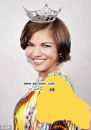 خبر جدید درباره ملکه زیبایی که موهایش را از ته تراشید+ عکس