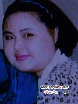 زنی که روغن خوراک پزی به صورتش تزریق کرد +عکس قبل و بعد