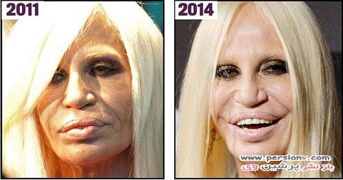 تغییر چهره ورساچه با جراحی زیبایی در طی سال ها +عکس قبل و بعد