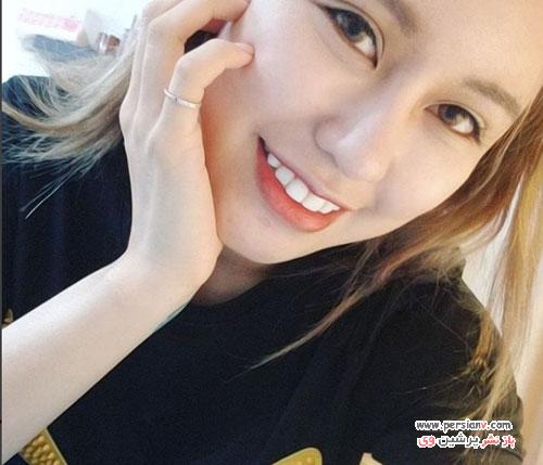 جراحی زیبایی زن چینی