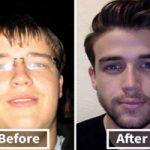 تغییرشکل های حیرت انگیز برخی افراد دنیا پس از کاهش وزن!