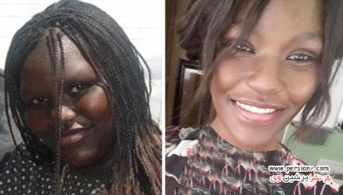 عکس قبل و بعد کاهش وزن