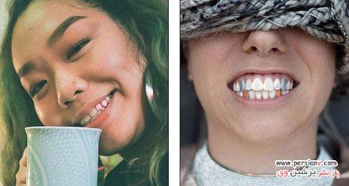 لاک دندان