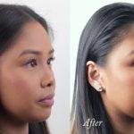 میکروکریستالین وکس روش موقت برای داشتن عمل زیبایی بینی