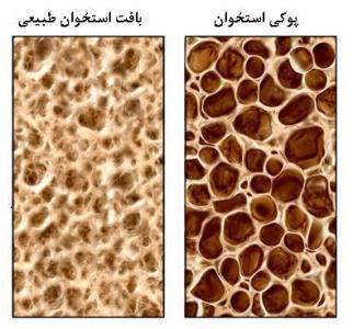 روز جهانی پوکی استخوان در ۲۰ اکتبر