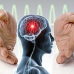 خفاش خون آشام موثر در بهبود سکته مغزی