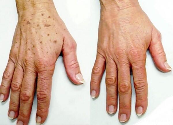 از بین بردن لکه های قهوه ای پوست