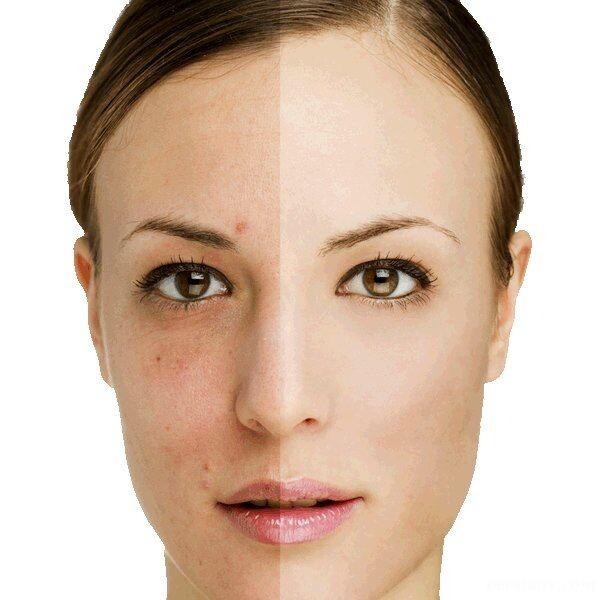 روش موثر برای درمان لکه های قهوه ای پوست