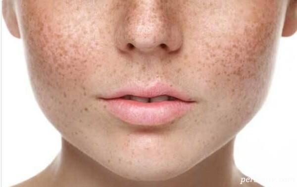 درمان لکه های قهوه ای رنگ روی پوست