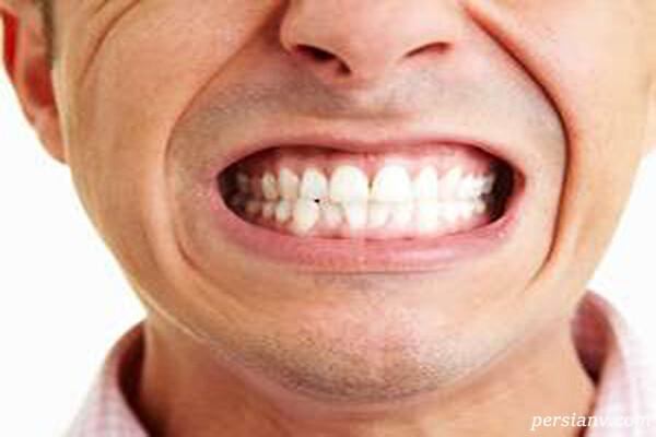 دندان قروچه در شب علامتی از استرس روزانه است