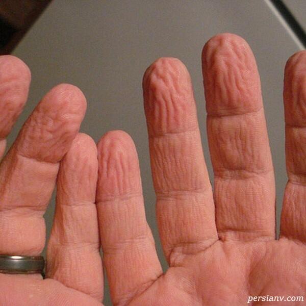 علت چروک شدن پوست دست در آب