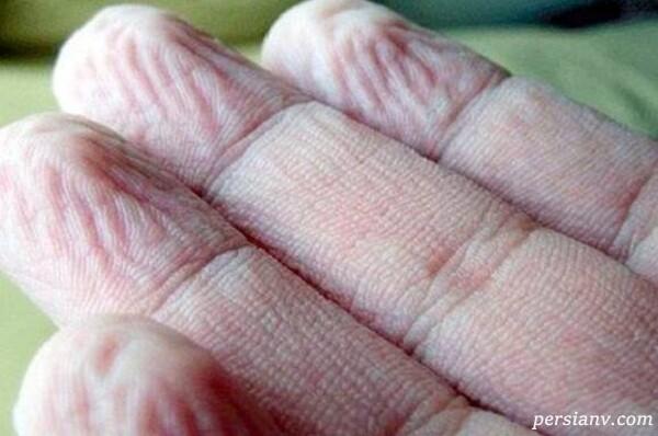 چرا پوست دست در آب چروک می شود