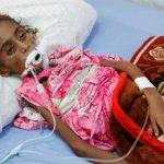تصاویر تلخ از مرگ دختر ۷ ساله یمنی بر اثر سوءتغذیه