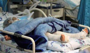 فوت کودک خردسال مرگ مغزی شده توسط ناپدری در مشهد
